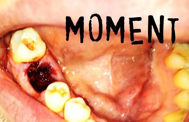 EoT - Moment